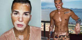 modelo com vitiligo