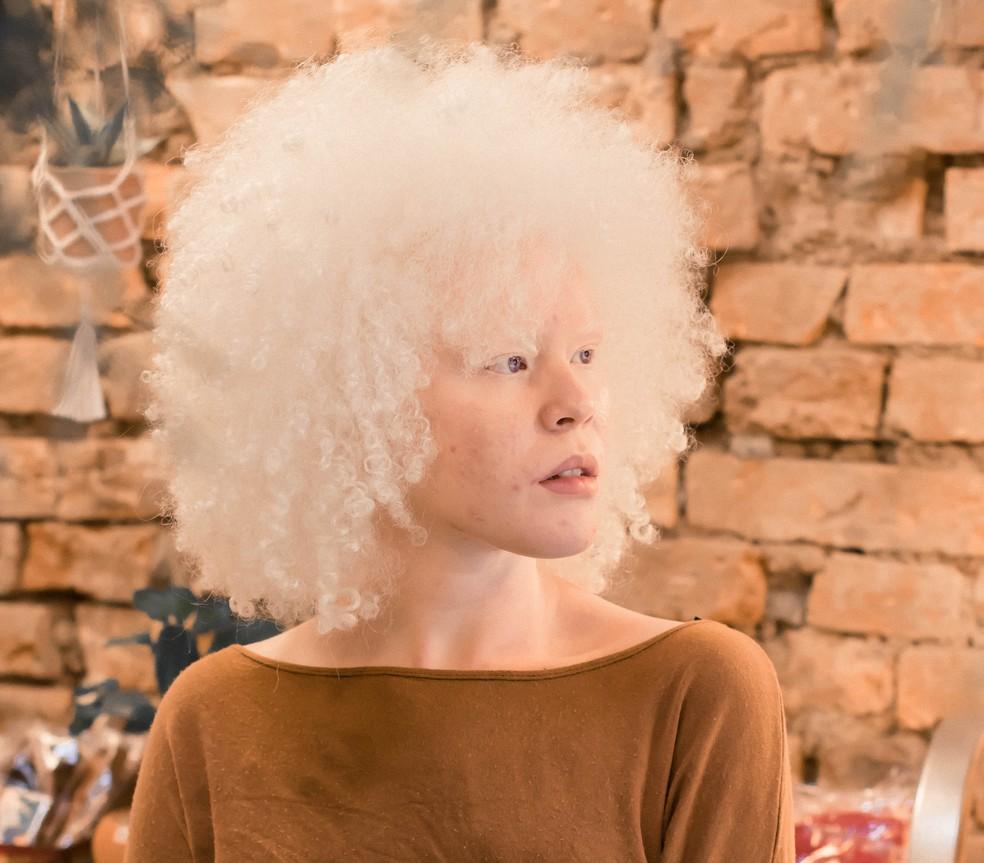 jovem estudante albina aprovada psicologia usp com cotas