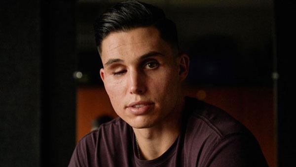 Jogador de beisebol com um olho