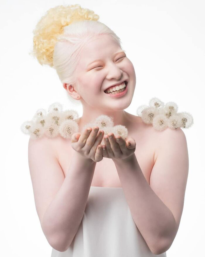 modelo chinesa albinismo sorrindo ensaio moda