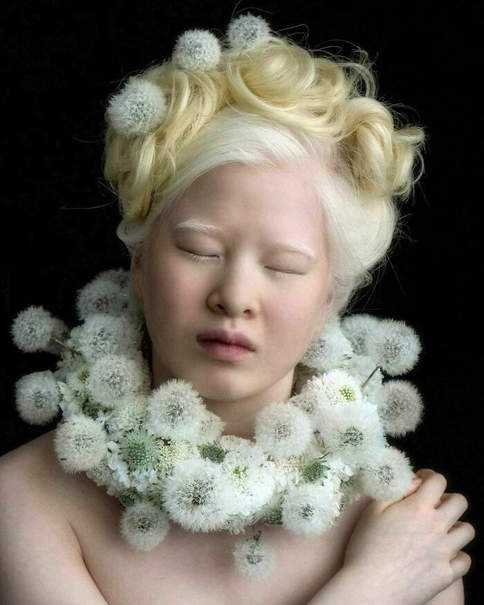 modelo chinesa albinismo