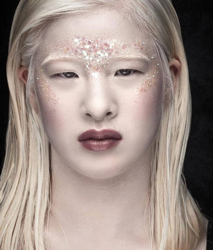 modelo chinesa albinismo ensaio