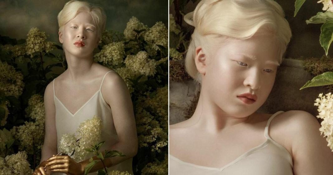 ensaio modelo albinismo vogue itália