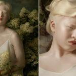 Abandonada por ter albinismo, chinesa de 16 anos vira modelo e brilha na Vogue Itália; veja as fotos