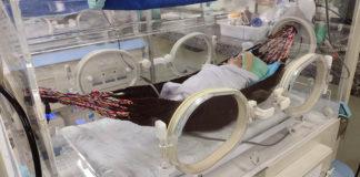 bebê prematuro deitado rede descanso