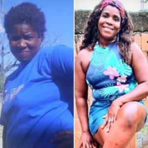 Mulher em antes e depois de perder peso