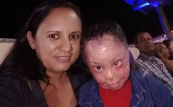 Menino com problema de pele ao lado de mãe