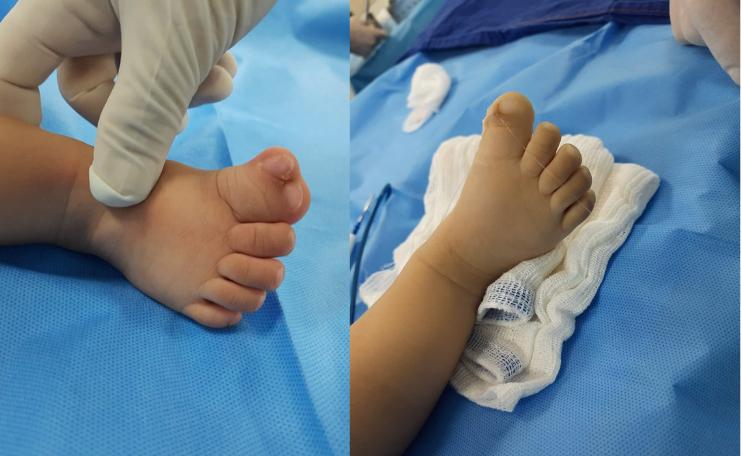 médico faz cirurgia gratuita bebê polidactilia