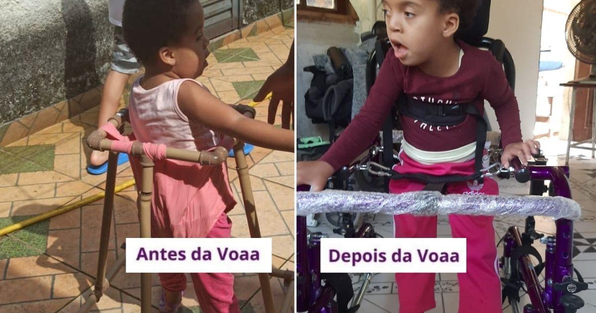 Mãe compra andador e arca custos da fisioterapia da filha após vaquinha da VOAA
