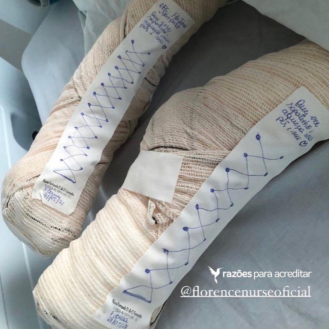 enfermeira faz sapatinhos improvisados para ajudar paciente