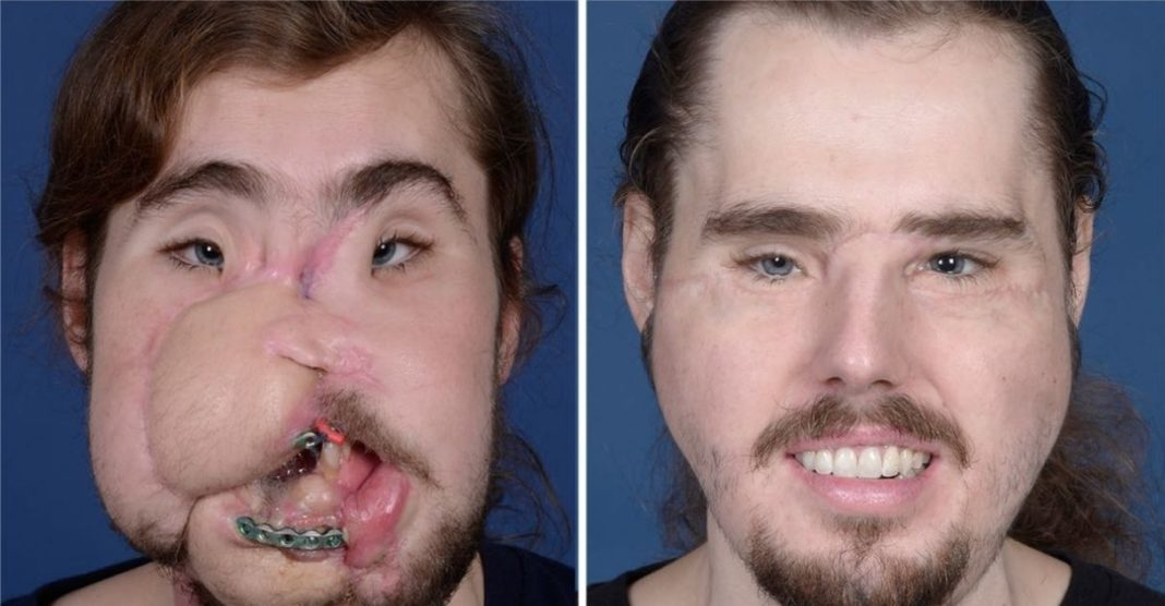 jovem passa por cirurgia transplante de rosto