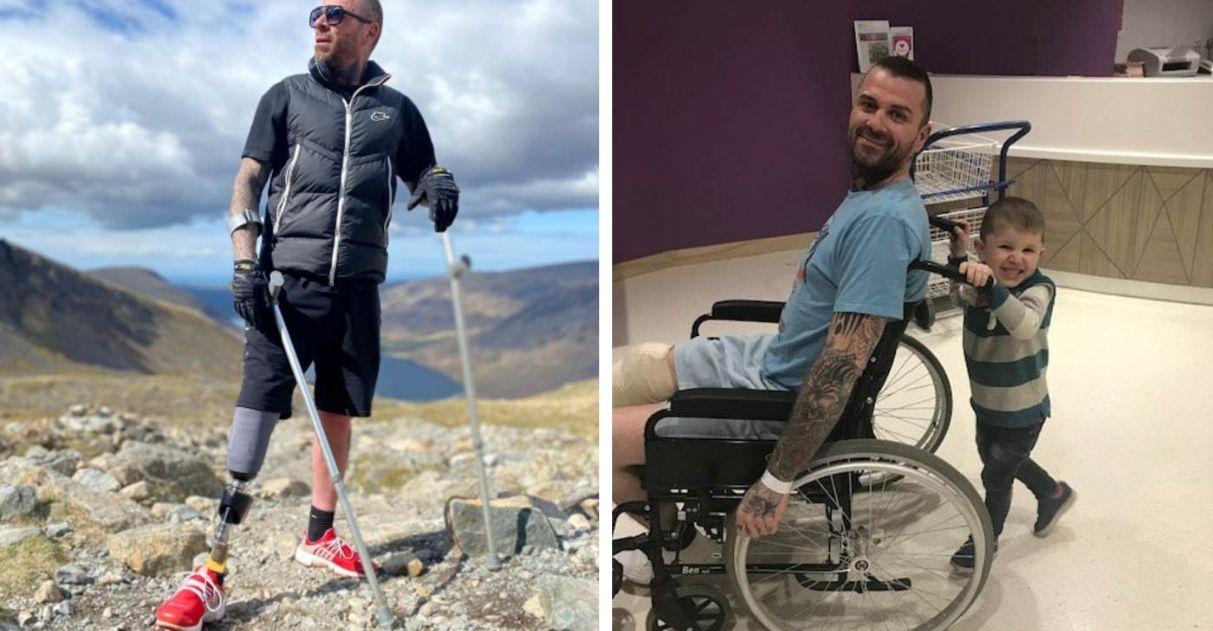 homem pernas amputadas escala montanhas inglaterra