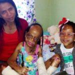 Gêmeas sobrevivem a grave incêndio e família conta com apoio de vaquinha para tratamento