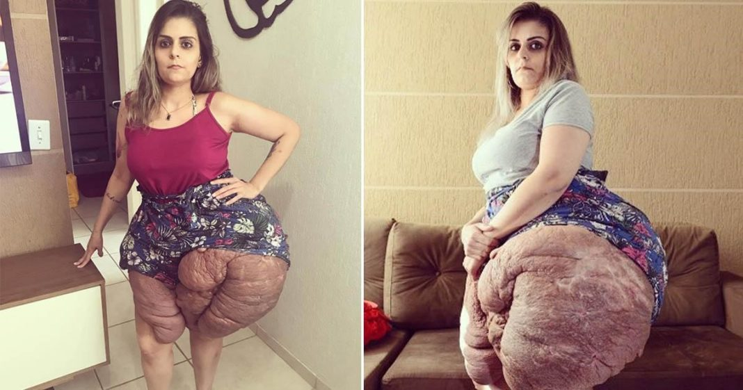 mulher doença rara causa tumores pernas