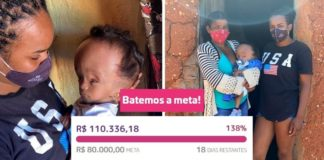 vaquinha voaa meta batida bebê com hidrocefalia
