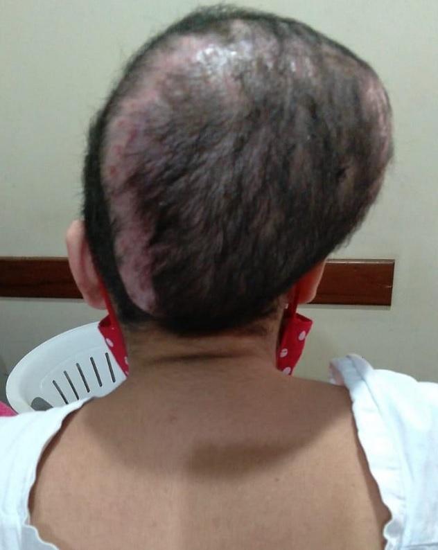 mulher faz cirurgia drenagem inchaço na cabeça