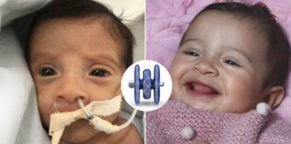 bebê prematuro com aparelho respiratório