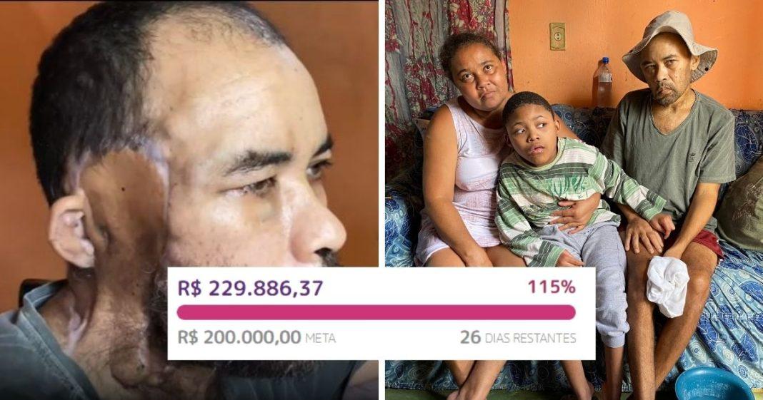 vaquinha voaa pedreiro câncer avançado tratamento paliativo