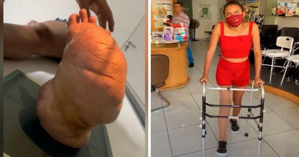 vaquinha voaa jovem tumor no pé faz cirurgia e ganha prótese