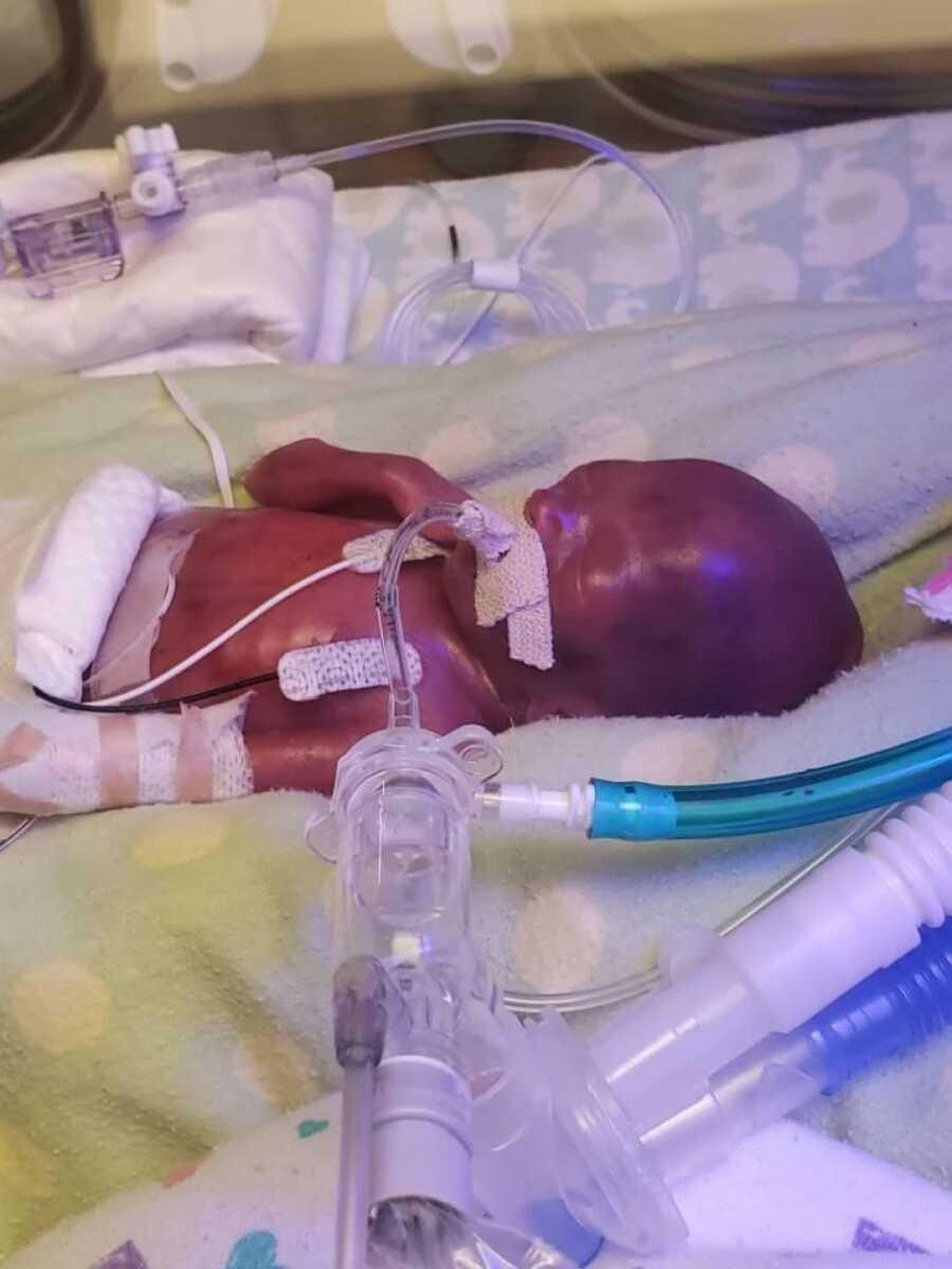bebê nasceu prematuro comemora primeiro ano de vida saudável