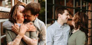 casal atingido por explosão e queimaduras ensaio de fotos