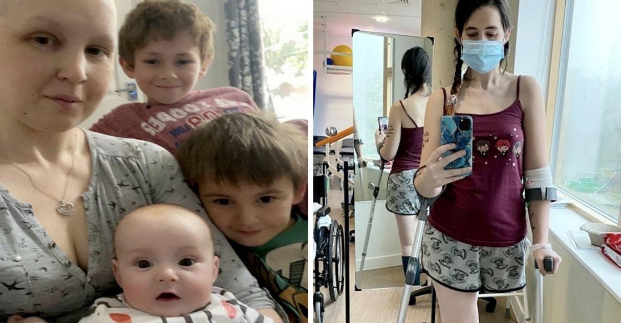 mulher grávida opta amputar a perna para salvar vida de bebê