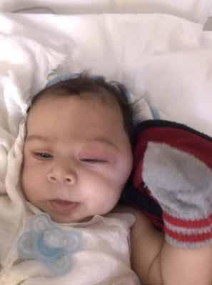bebê com inchaço no lado esquerdo do rosto causado por câncer